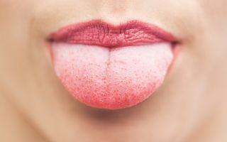 Онемение языка при сахарном диабете: причины и устранение симптома