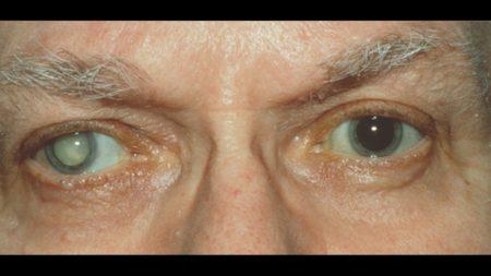 один глаз побелел
