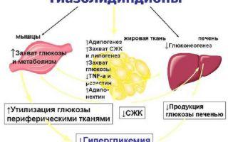 Какие препараты относятся к классу тиазолидиндионы, какой эффект оказывают, принципы лечения диабета