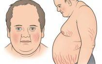 Причины сахара в крови 17 ммоль/л, и чем опасен скачок гликемии, симптомы патологии