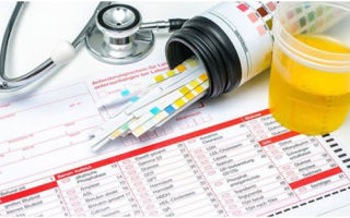 Почему появляется ацетон в моче при диагнозе сахарный диабет, симптомы патологии и способы купирования опасного синдрома