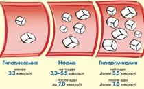 Как быстро снизить уровень сахара в крови, эффективные методы