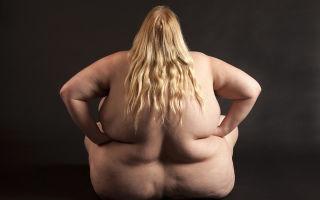Как похудеть при диагнозе сахарный диабет 2 типа, потенциальные осложнения ожирения, диета, физические нагрузки и противопоказанные продукты питания