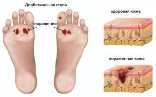 Симптомы и лечение диабетической стопы, почему возникает недуг, профилактика