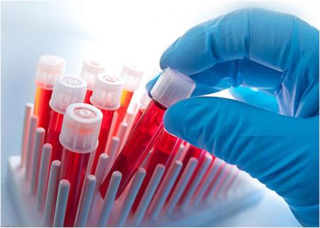 Нормы холестерина в крови у диабетиков