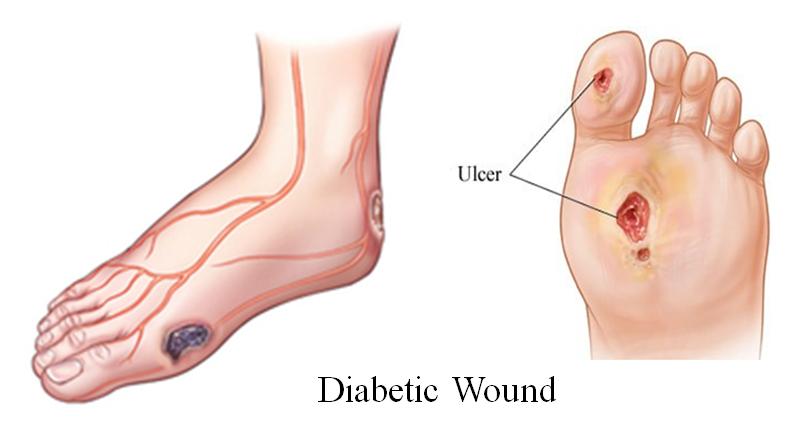Диабетическая ангиопатия нижних конечностей – лечение болезни