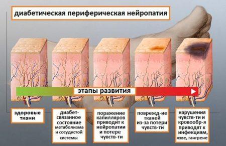 Диабетическая амиотрофия: симптомы атрофии мышц ног при сахарном диабете, лечение