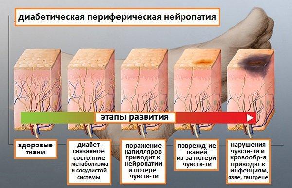 Диабетическая полинейропатия нижних конечностей: лечение препаратами, симптомы