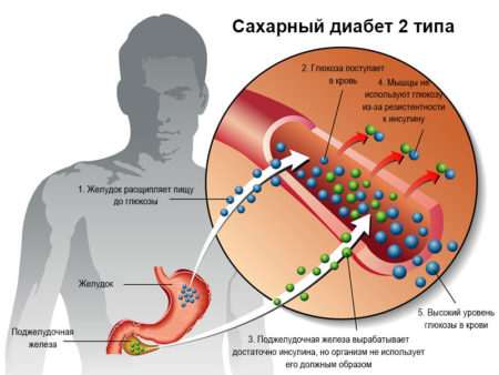 Сало при сахарном диабете второго типа