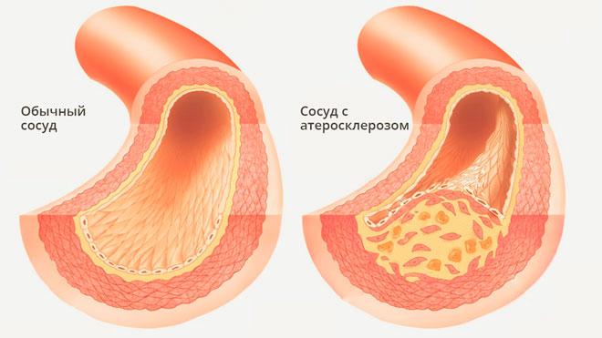 Повышен инсулин в крови – клинические проявления патологии, предотвращение