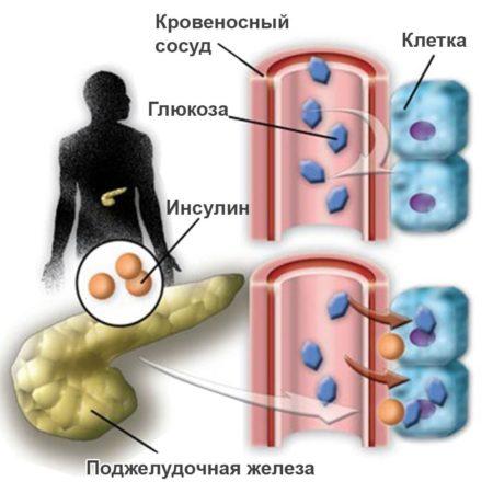 Снотворное при сахарном диабете 2 типа: какие успокоительные можно диабетику?