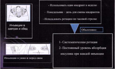 Схема возможного использования места для введения лекарственного средства